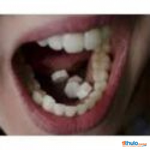 Dr @ JANIE @$( +27725061826 )// ABORTION PILLS FOR SALE IN , ISHOWE, MIDDLEBURG, MUSCART, DOHA, KLIPFONTEIN, PHOLA, AND OMAN.